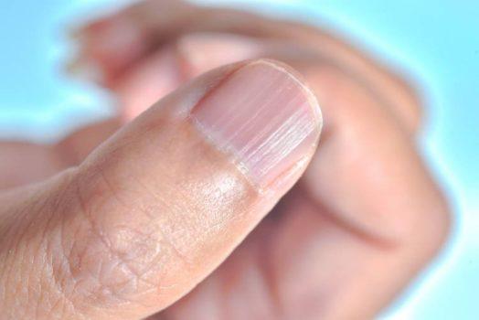 estrías en las uñas